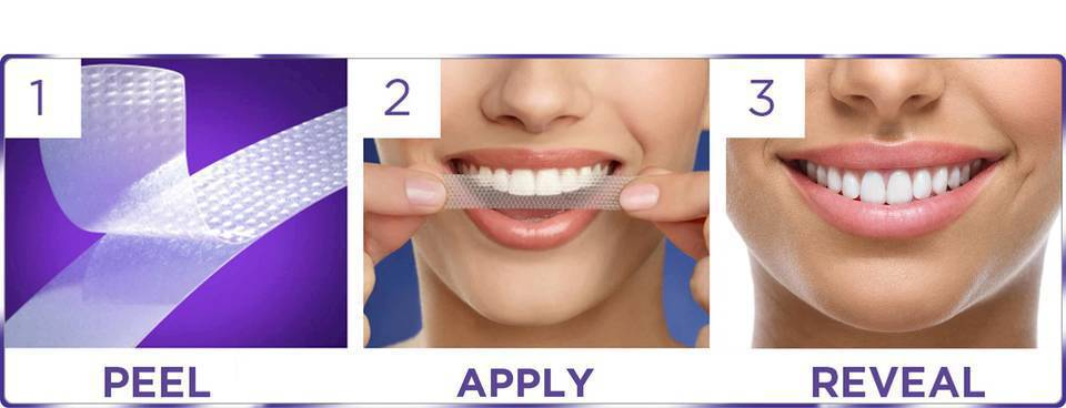 bielenie zubov doma recenzia